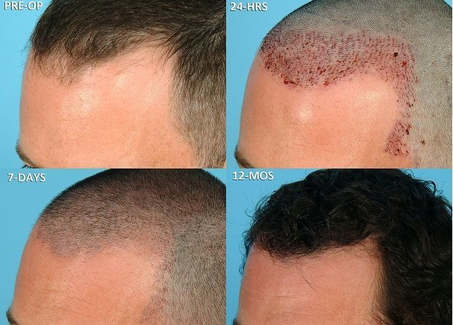Image result for Hair implant
