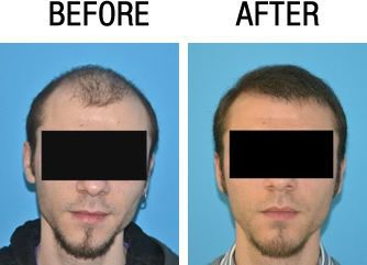 before after hair transplant FUE