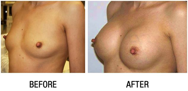 breast-enlargement-before-and-after2