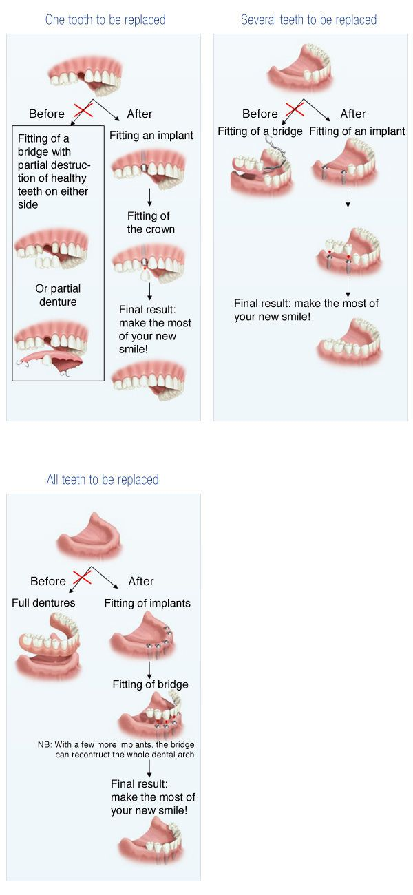 Dental Diagram English Novacorpus