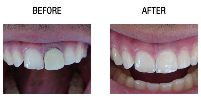 dental-crown-before-after3