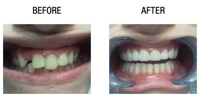 zirconium-dental-crowns-before-after5
