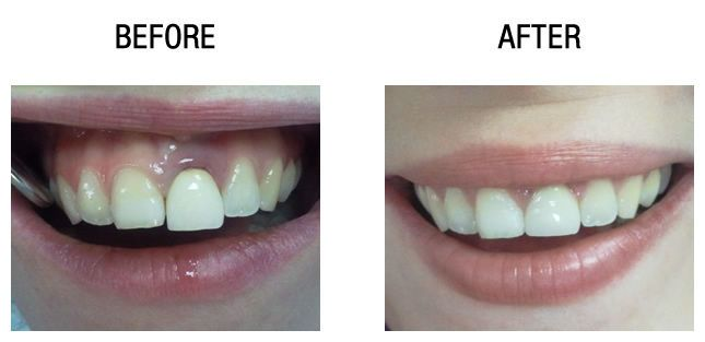 dental-crowns-before-after6