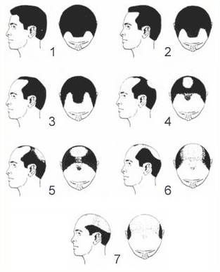 hair transplant type of baldness