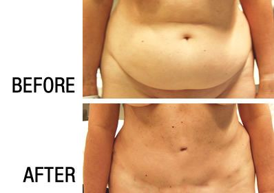 tummy-tuck-before-after-photo